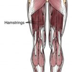 How to diagnose, treat and prevent Hamstring Strains