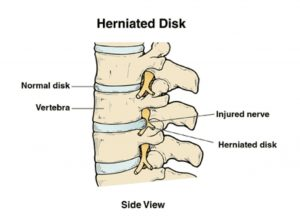 What is a herniated disk?